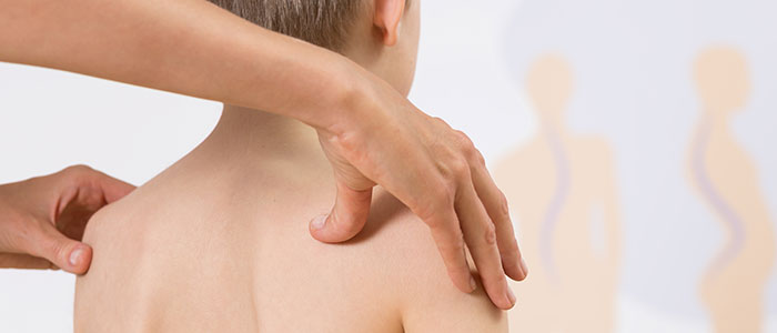 Chiropractic Cares for Scoliosis